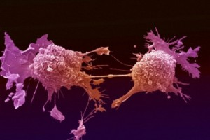 Così il tumore al seno diventa resistente alle terapie