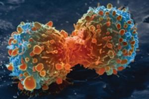 Tumore al seno, così si diffonde ai polmoni