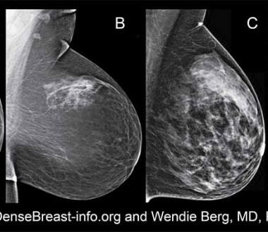 Se il seno è denso aumenta il rischio tumori. Ecco cosa c'è da sapere