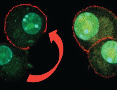 Cancro al seno, scoperto meccanismo con cui le cellule si rigenerano
